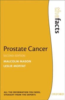 Prostate Cancer, Paperback Book