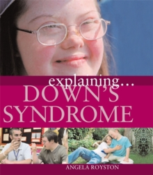 Down's Syndrome, Paperback Book
