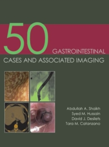 50 Gastrointestinal Cases & Associated Imaging, Paperback Book