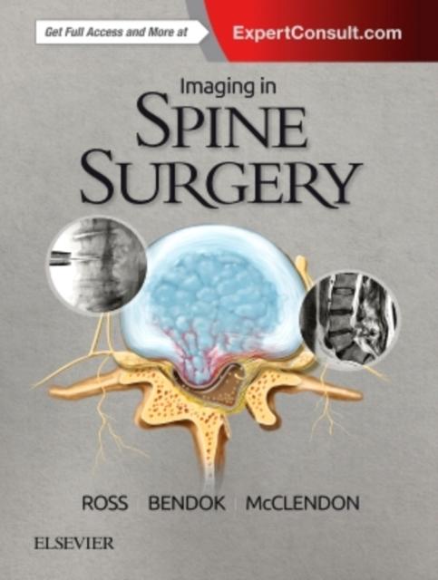 Imaging In Spine Surgery, Ross, Jeffrey S., Bendock, Bernard R., . 9780323485548